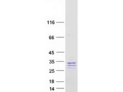 Secretogranin V (SCG5) (NM_001144757) Human Mass Spec Standard
