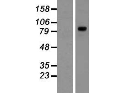 Transient overexpression lysate of tRNA-yW synthesizing protein 1 homolog (S. cerevisiae) (TYW1)