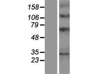 Transient overexpression lysate of Yip1 domain family, member 1 (YIPF1)