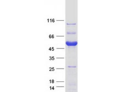 PRAS40 (AKT1S1) (NM_032375) Human Recombinant Protein