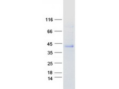 CHODL MS Standard C13 and N15-labeled recombinant protein (NP_079220)