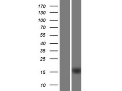 Transient overexpression lysate of chromosome 1 open reading frame 162 (C1orf162)