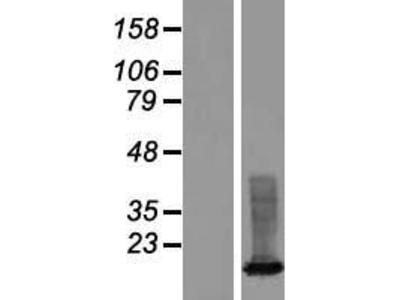 Transient overexpression lysate of X antigen family, member 3 (XAGE3), transcript variant 2