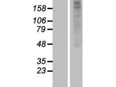 Transient overexpression lysate of olfactory receptor, family 1, subfamily J, member 2 (OR1J2)