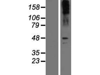 Noradrenaline transporter (SLC6A2) (NM_001043) Human Over-expression Lysate