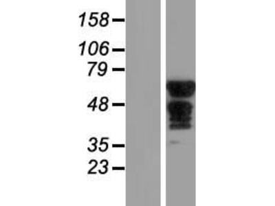 SLC6A18 (NM_182632) Human Over-expression Lysate