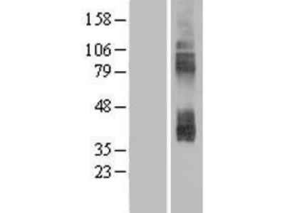 SLC7A3 (NM_001048164) Human Over-expression Lysate