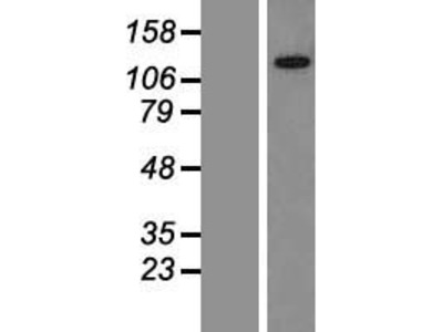Transient overexpression lysate of KIAA0240 (KIAA0240)