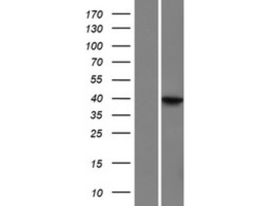 Transient overexpression lysate of leucine rich repeat containing 69 (LRRC69)