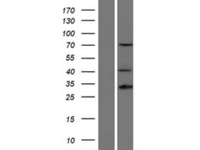 Transient overexpression lysate of homeobox D13 (HOXD13)