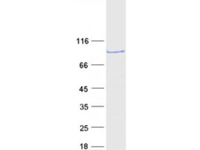 Recombinant protein of human SET and MYND domain containing 4 (SMYD4)