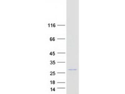 LOC202051 (XM_114430) Human Recombinant Protein