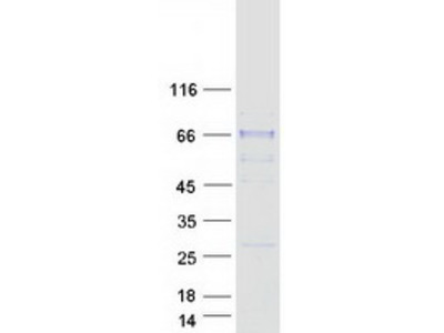 SIAE (NM_170601) Human Recombinant Protein
