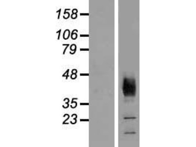 Transient overexpression lysate of solute carrier family 36 (proton/amino acid symporter), member 2 (SLC36A2)