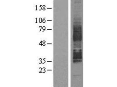 Transient overexpression lysate of G protein-coupled receptor 85 (GPR85), transcript variant 1