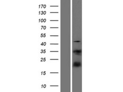 S100A4 (NM_019554) Human Over-expression Lysate