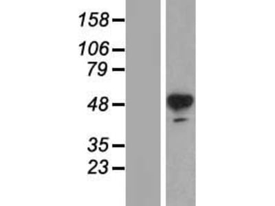 Transient overexpression lysate of tyrosine hydroxylase (TH), transcript variant 2