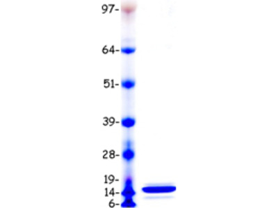 Recombinant protein of human serum amyloid A1 (SAA1), transcript variant 1