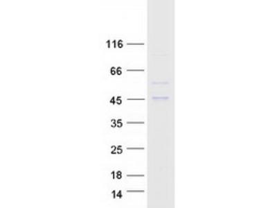 AADACL2 (NM_207365) Human Mass Spec Standard