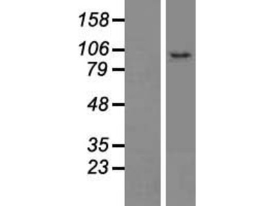 C10orf118 (CCDC186) (NM_018017) Human Over-expression Lysate