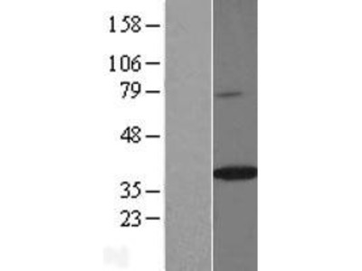 SPON2 (NM_001128325) Human Over-expression Lysate