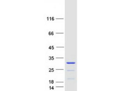 CCDC140 (NM_153038) Human Mass Spec Standard