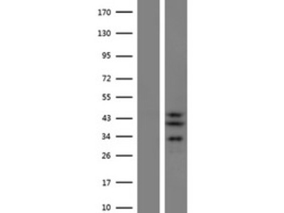 SLC25A28 (NM_031212) Human Over-expression Lysate