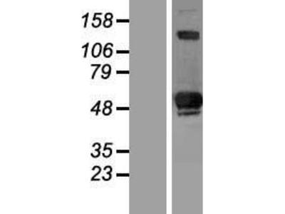 Transient overexpression lysate of SIVA1, apoptosis-inducing factor (SIVA1), transcript variant 1
