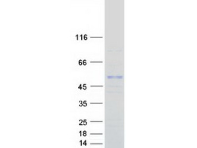 ASB3 (NM_145863) Human Recombinant Protein