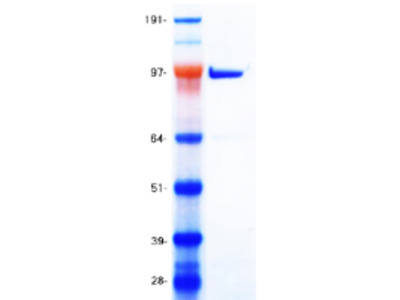 Recombinant protein of human sirtuin (silent mating type information regulation 2 homolog) 1 (S. cerevisiae) (SIRT1), transcript variant 1