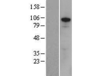 Transient overexpression lysate of zinc finger protein, X-linked (ZFX)