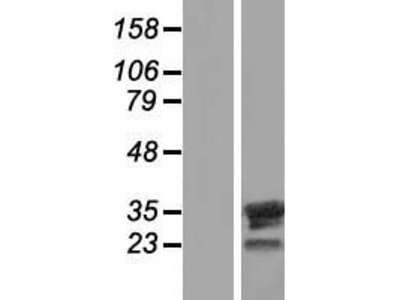 Transient overexpression lysate of family with sequence similarity 9, member B (FAM9B)