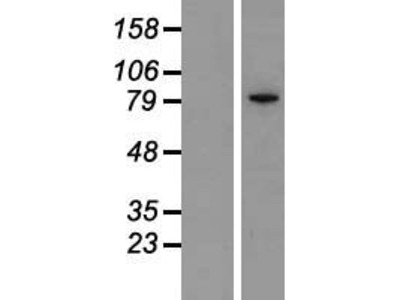 Transient overexpression lysate of inhibitor of kappa light polypeptide gene enhancer in B-cells, kinase epsilon (IKBKE)