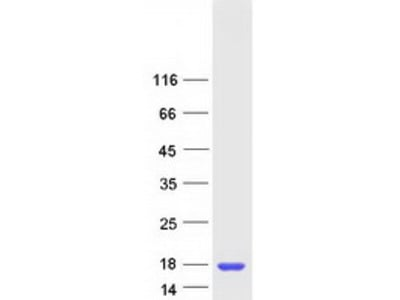 SSNA1 (NM_003731) Human Recombinant Protein
