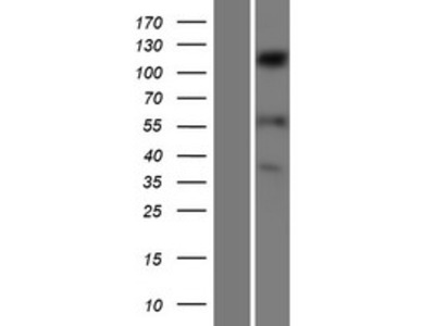 SENP6 (NM_015571) Human Over-expression Lysate
