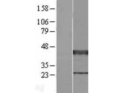 Transient overexpression lysate of X-ray repair complementing defective repair in Chinese hamster cells 3 (XRCC3), transcript variant 1