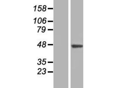 SLC35B3 (NM_001142541) Human Over-expression Lysate