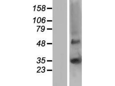 Transient overexpression lysate of gap junction protein, beta 5, 31.1kDa (GJB5)