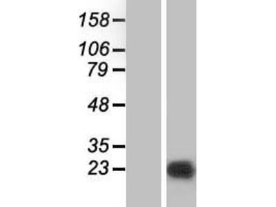Transient overexpression lysate of protein phosphatase 1, regulatory (inhibitor) subunit 14B (PPP1R14B)