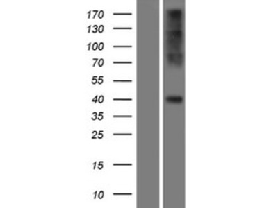 Transient overexpression lysate of chemokine (C-C motif) receptor 2 (CCR2), transcript variant A