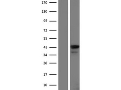 Leukotriene B4 Receptor 2 (LTB4R2) (NM_001164692) Human Over-expression Lysate