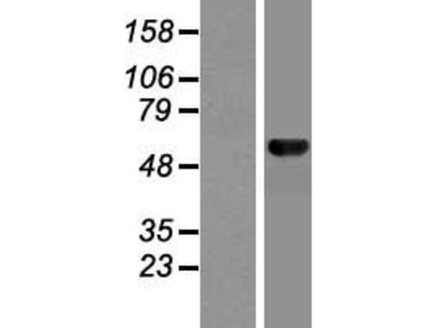 Transient overexpression lysate of MON1 homolog B (yeast) (MON1B)