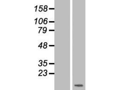 Transient overexpression lysate of chemokine (C-C motif) ligand 15 (CCL15)