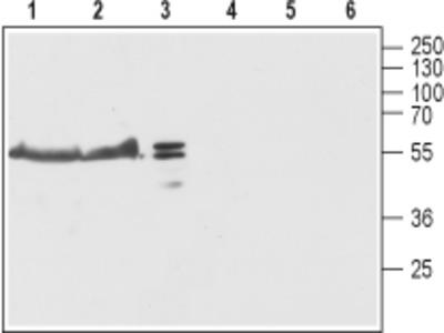 Anti-TRIC-B (TMEM38B) Antibody