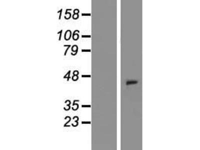 Transient overexpression lysate of chemokine (C motif) receptor 1 (XCR1), transcript variant 2