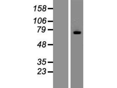 Transient overexpression lysate of myotubularin related protein 7 (MTMR7)