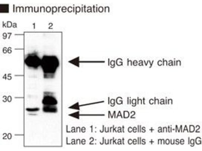 Anti-MAD2 (Human) mAb