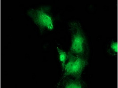 BEST3 (Bestrophin 3) mouse monoclonal antibody, clone OTI2H3 (formerly 2H3)