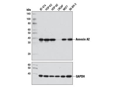 Annexin A2 (D11G2) Rabbit mAb