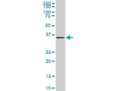 BVES Monoclonal Antibody